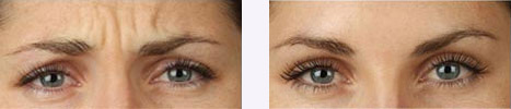 Botox Before and After Laguna Niguel   FIllers Orange County