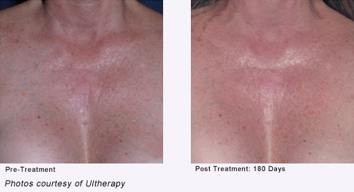 Before and After Ultherapy Laguna Niguel   Skin Tightening
