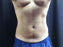 Patient # 90595 After Photo # 2