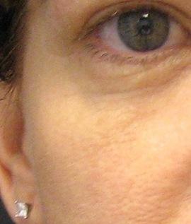 Patient # 52537 After Photo # 2