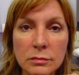 Patient # 53571 After Photo # 2