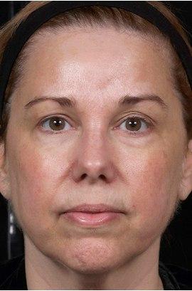 Patient # 12881 After Photo # 2