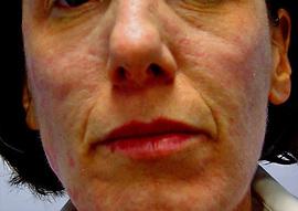 Patient # 26712 Before Photo # 1