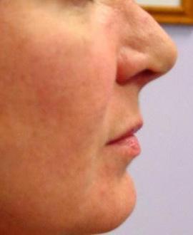 Patient # 65324 After Photo # 2