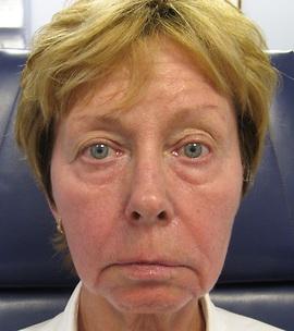 Patient # 83581 Before Photo # 1