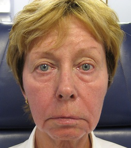 Patient # 87387 Before Photo # 1