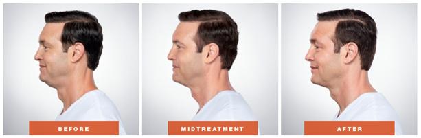 Kybella for Men Orange County, CA - OC Dermatology