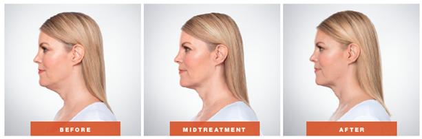 Kybella Treatment Orange County, CA - OC Dermatology