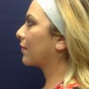Woman - Kybella double chin treatment