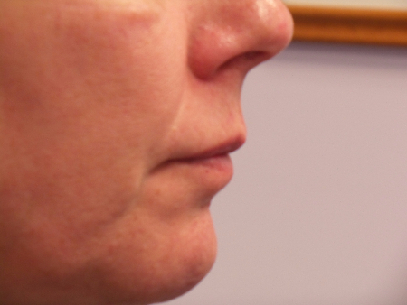 lips-before