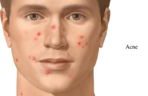 acne treatments in a dermatologists office