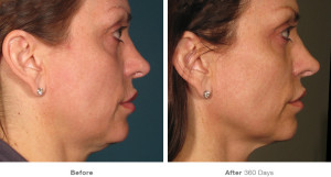 Tighten skin without surgery in Orange County